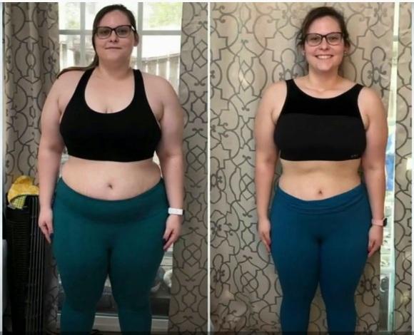 Pro Slim Caps antes e depois