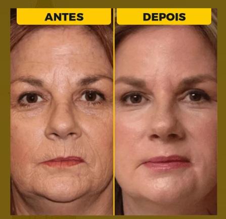 Skin Vid Ultra antes e depois