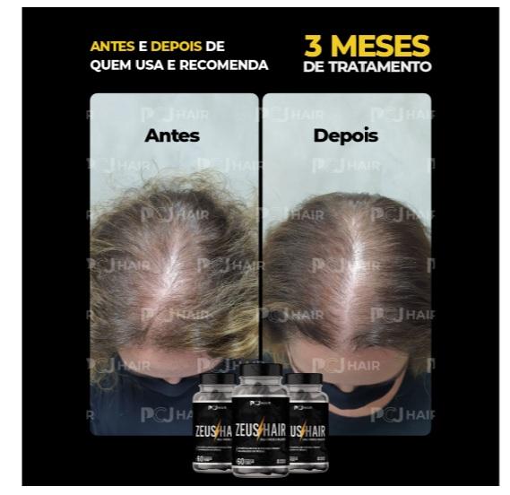 Zeus Hair antes e depois